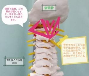 肩こり症状の説明